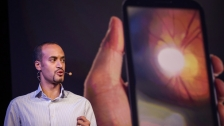 TED: Andrew Bastawrous: Get your next eye exam on a smartphone - Andrew Bastawrous (2014)